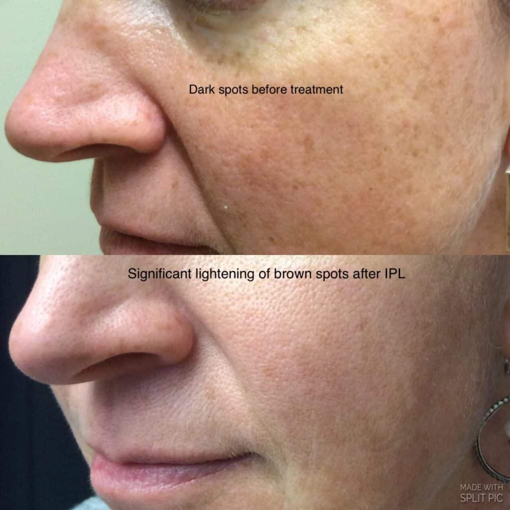 IPL (Intense pulsed light) - Before & After Pictures in Issaquah and
