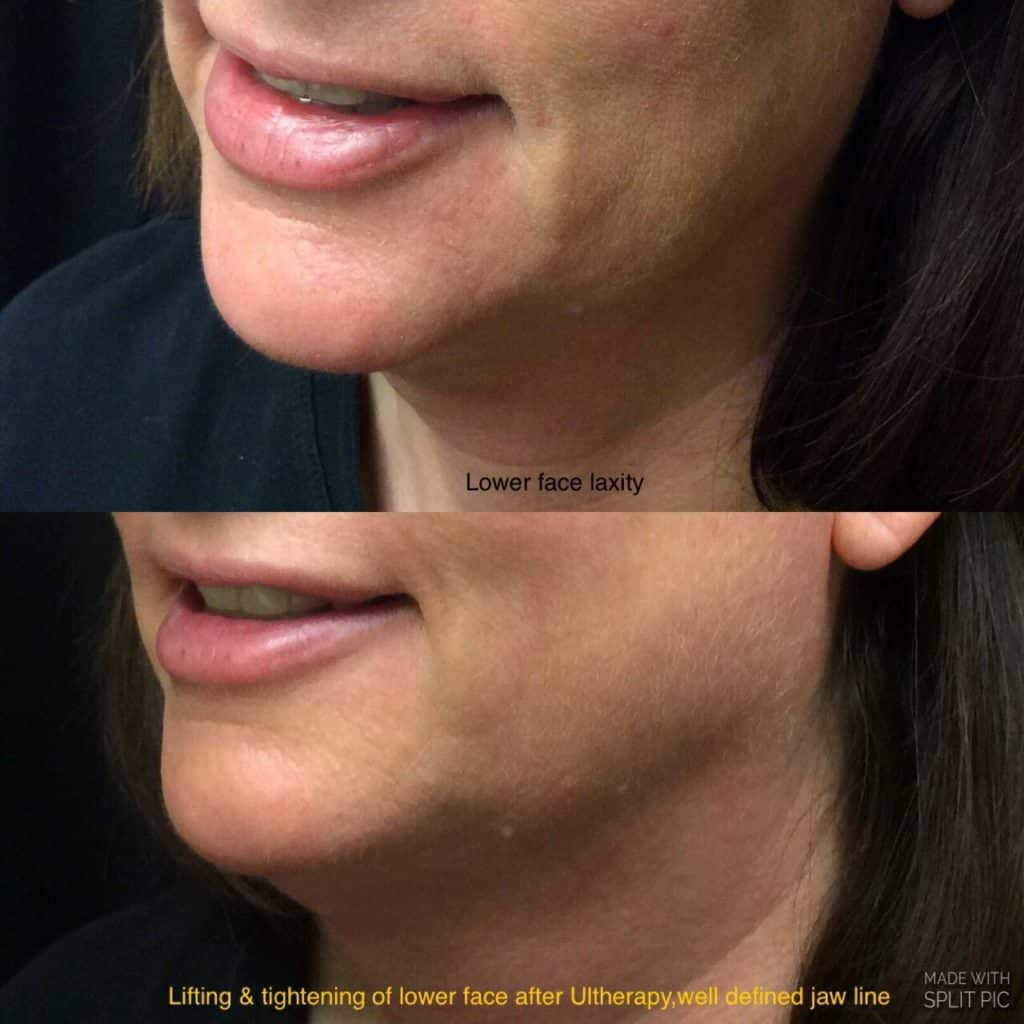 Ultherapy - Before & After Pictures in Issaquah and Bellevue