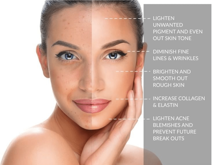 Chemical Peels For A Smoother Less Wrinkled Neck Face And